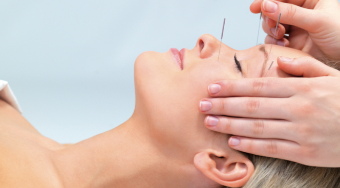 Gesicht bei Akupunktur