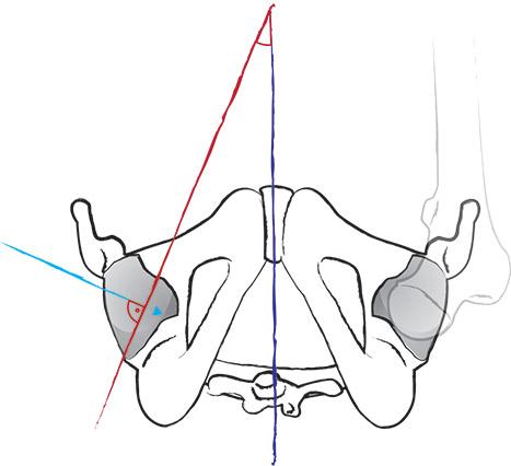 Anatomie: Beweglichkeit im Hüftgelenk - Yoga World - Home of Yoga ...