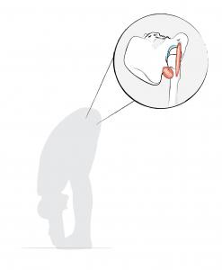 Bild 2: Die Position des Beckens (Pelvis), neu ausbalanciert, wobei das Bindegewebe hinten mehr die Funktion einer zug-, das vorne mehr die einer druckelastischen Feder übernimmt.